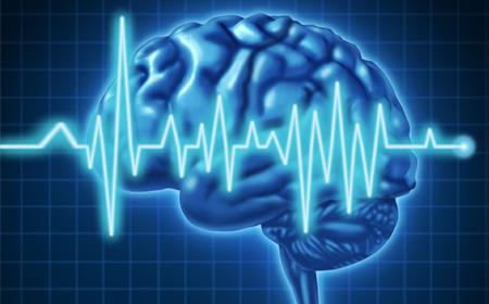 Tema destacado de agosto - Ataque cerebral