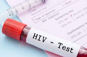 "jeringa con etiqueta que dice ""VIH / SIDA"""